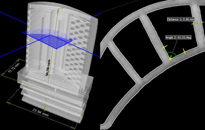 Figure 6. Example of distance and angle measurements in a CT scan.